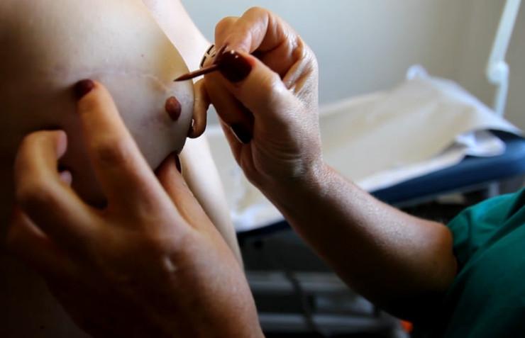Reconstruccion pechos tras cancer de mamas