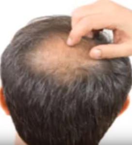 perdida de cabello por ansieadd