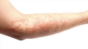Efectos-estres-en-piel